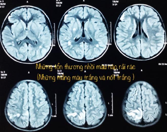 TP.HCM: Nhiều trẻ bị yếu nửa người vì bệnh Moyamoya - ảnh 2