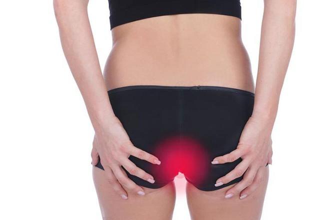 7 nguyên nhân gây ngứa ở mông rất có thể nghiêm trọng hơn bạn nghĩ - Ảnh 3.