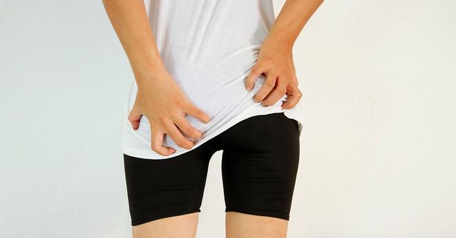 7 nguyên nhân gây ngứa ở mông rất có thể nghiêm trọng hơn bạn nghĩ - Ảnh 5.