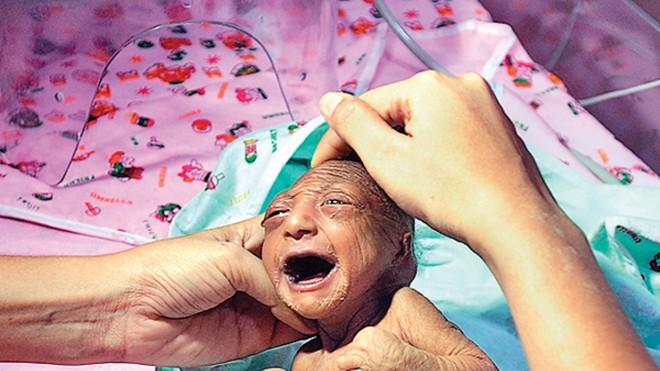 Bố mẹ nhẫn tâm bỏ đói đến chết con gái 2 tuần tuổi vì con có ngoại hình khác thường, may mắn thay vị cứu tinh đã xuất hiện - Ảnh 2.