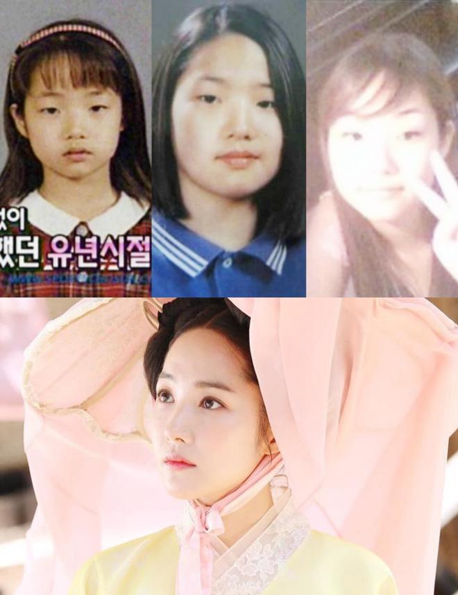 Sao Hàn bị tố dao kéo cùng lò: Diễn viên giống hệt Hoa hậu, nhưng nhóm gây sốc nhất lại lên đến tận 34 người - Ảnh 6.
