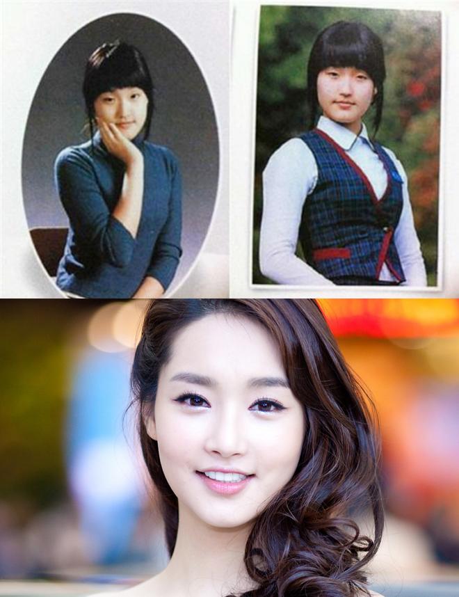 Sao Hàn bị tố dao kéo cùng lò: Diễn viên giống hệt Hoa hậu, nhưng nhóm gây sốc nhất lại lên đến tận 34 người - Ảnh 7.