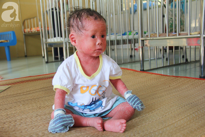Người đầy vẩy ngứa như da trăn, bé gái 14 tháng tuổi bị bố mẹ bỏ rơi nên không có tiền chữa trị - Ảnh 11.