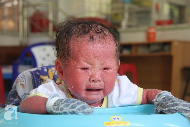 Người đầy vẩy ngứa như da trăn, bé gái 14 tháng tuổi bị bố mẹ bỏ rơi nên không có tiền chữa trị - Ảnh 1.