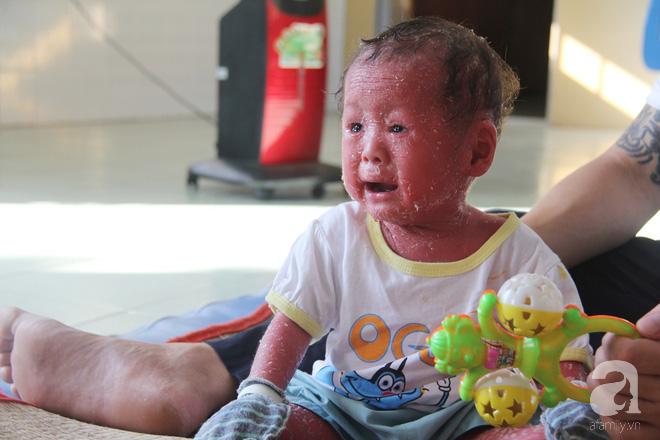 Người đầy vẩy ngứa như da trăn, bé gái 14 tháng tuổi bị bố mẹ bỏ rơi nên không có tiền chữa trị - Ảnh 6.