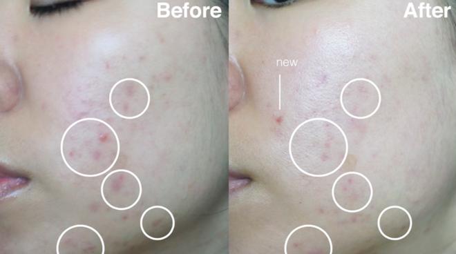 Nhờ loại dụng cụ đơn giản, mà những vết rạn da của cô gái này đã biến mất chỉ sau 2 tuần sử dụng - Ảnh 10.