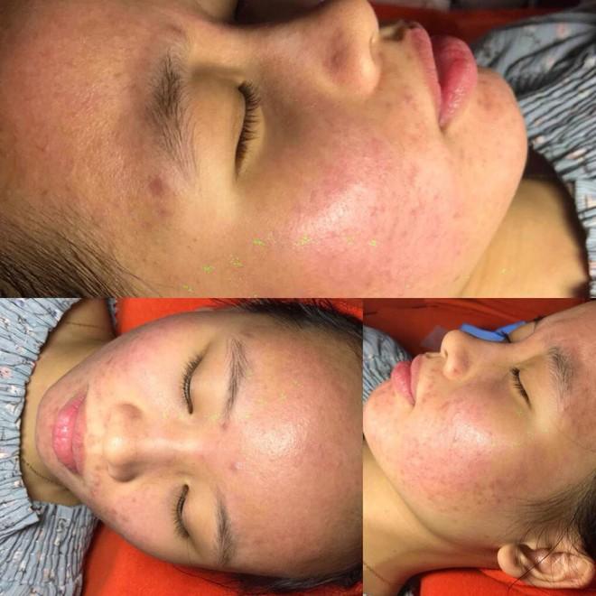 Dùng dầu tẩy trang sai cách, cô gái trẻ đắng lòng vì làn da bị tàn phá nặng nề bởi mụn - Ảnh 6.