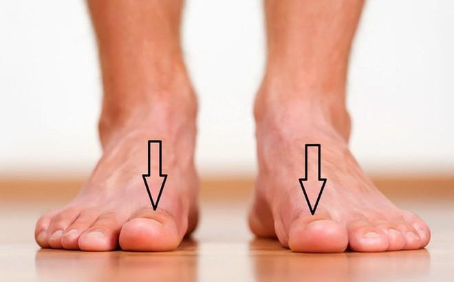 Bàn chân có 5 dấu hiệu này thì đừng chủ quan mà nên đi khám ngay - Ảnh 1.