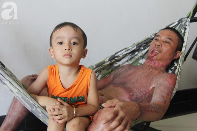 Bố bị điện giật cháy cả người không có tiền chữa, bé trai 4 tuổi sợ hãi nép vào lòng mẹ vì không nhận ra - Ảnh 7.