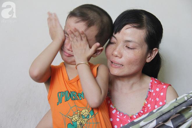 Bố bị điện giật cháy cả người không có tiền chữa, bé trai 4 tuổi sợ hãi nép vào lòng mẹ vì không nhận ra - Ảnh 4.