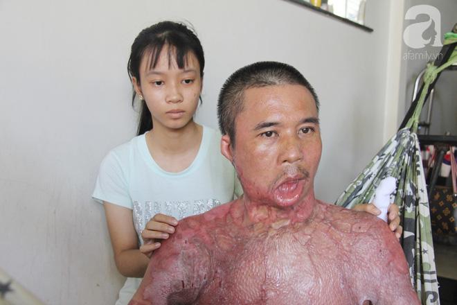 Bố bị điện giật cháy cả người không có tiền chữa, bé trai 4 tuổi sợ hãi nép vào lòng mẹ vì không nhận ra - Ảnh 9.