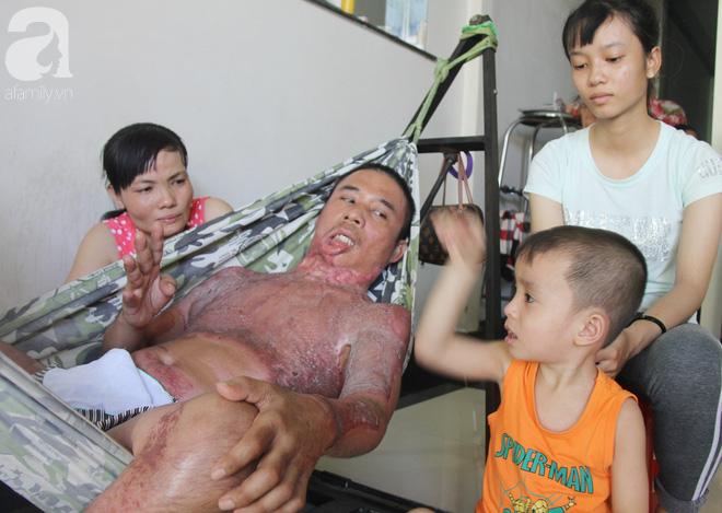 Bố bị điện giật cháy cả người không có tiền chữa, bé trai 4 tuổi sợ hãi nép vào lòng mẹ vì không nhận ra - Ảnh 14.