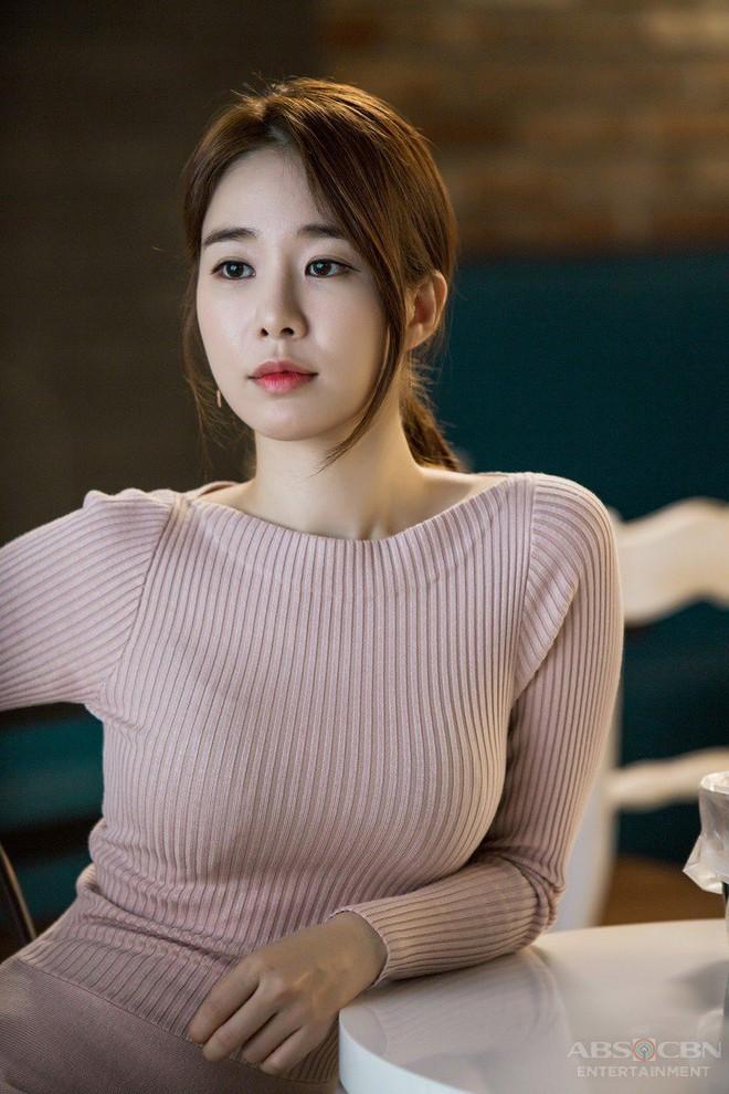 """Những ca phẫu thuật thành công của mỹ nhân Hàn: Đúng là không có gì là không thể, một bước """"vịt hóa thiên nga"""", lọt top gương mặt đẹp nhất thế giới - Ảnh 15."""