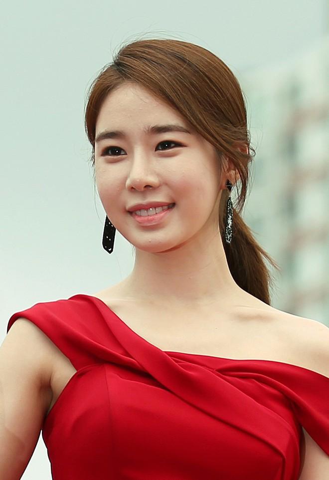 """Những ca phẫu thuật thành công của mỹ nhân Hàn: Đúng là không có gì là không thể, một bước """"vịt hóa thiên nga"""", lọt top gương mặt đẹp nhất thế giới - Ảnh 16."""