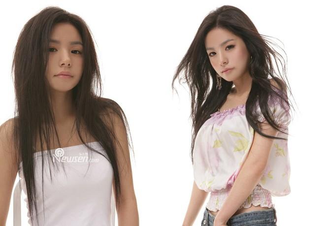 """Những ca phẫu thuật thành công của mỹ nhân Hàn: Đúng là không có gì là không thể, một bước """"vịt hóa thiên nga"""", lọt top gương mặt đẹp nhất thế giới - Ảnh 22."""