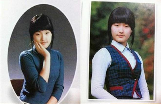 """Những ca phẫu thuật thành công của mỹ nhân Hàn: Đúng là không có gì là không thể, một bước """"vịt hóa thiên nga"""", lọt top gương mặt đẹp nhất thế giới - Ảnh 27."""