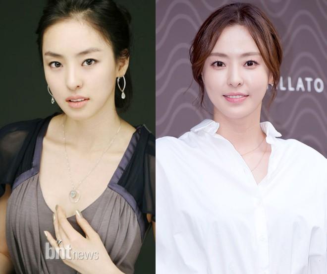 """Những ca phẫu thuật thành công của mỹ nhân Hàn: Đúng là không có gì là không thể, một bước """"vịt hóa thiên nga"""", lọt top gương mặt đẹp nhất thế giới - Ảnh 34."""
