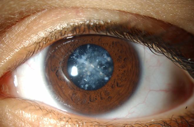photo 1 1525255027412430606264 Các căn bệnh ở mắt nếu không chữa trị sớm có thể dẫn tới nguy cơ mù lòa