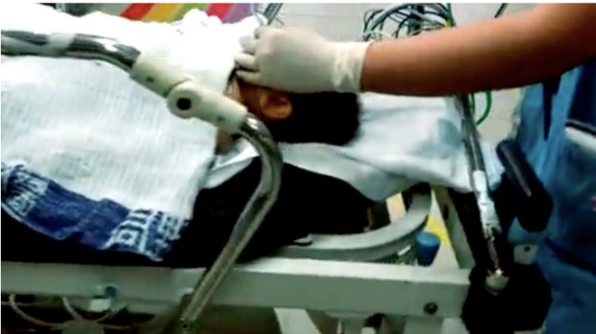 Bé trai 8 tháng tuổi nguy kịch vì góc chết ở chung cư không phải ai cũng để ý - Ảnh 2.