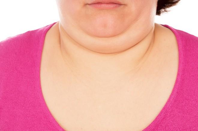 10 dấu hiệu cho thấy tuyến giáp của bạn không được khỏe mạnh và bạn cần đi khám ngay - Ảnh 10.