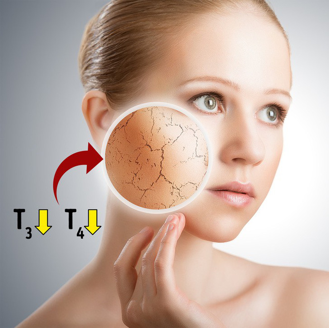 10 dấu hiệu cho thấy tuyến giáp của bạn không được khỏe mạnh và bạn cần đi khám ngay - Ảnh 2.