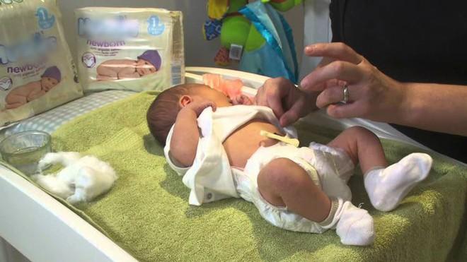 Những hiện tượng thường gặp ở trẻ sơ sinh sẽ ảnh hưởng đến sức khỏe của trẻ nếu bố mẹ lơ là - Ảnh 1.
