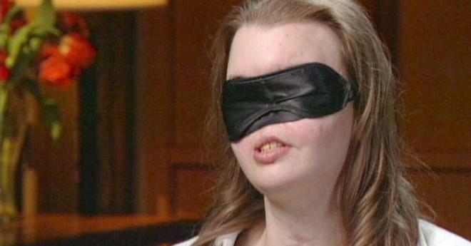 Mất nửa mặt vì tai nạn, giờ đây cô đã có một lý do tuyệt vời để tự tin tháo chiếc mặt nạ đã gắn liền hơn 11 năm trời - Ảnh 1.