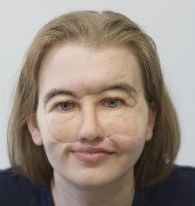 Mất nửa mặt vì tai nạn, giờ đây cô đã có một lý do tuyệt vời để tự tin tháo chiếc mặt nạ đã gắn liền hơn 11 năm trời - Ảnh 7.