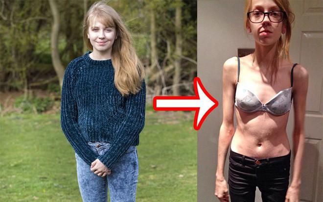 Cô gái trẻ nghiện giảm cân đến nỗi suýt mất mạng vì muốn sở hữu được thân hình siêu mỏng - Ảnh 1.