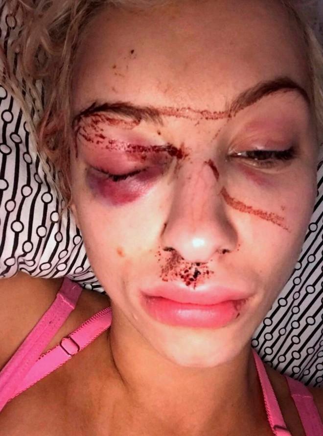 Nhìn ảnh tự sướng của bạn thân, cô gái lập tức gọi cảnh sát và giải cứu bạn sau 21 giờ kinh hoàng - ảnh 2