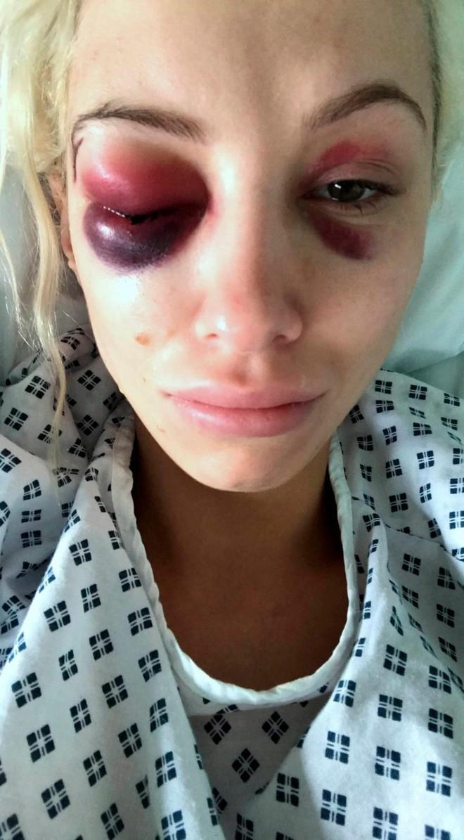 Nhìn ảnh tự sướng của bạn thân, cô gái lập tức gọi cảnh sát và giải cứu bạn sau 21 giờ kinh hoàng - ảnh 4