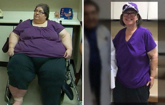 14 hình ảnh lột xác thần sầu khiến chị em có thêm động lực giảm cân - Ảnh 11.