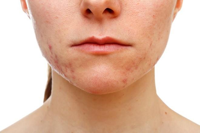 12 dấu hiệu trên khuôn mặt tiết lộ tình trạng sức khỏe của bạn - Ảnh 12.
