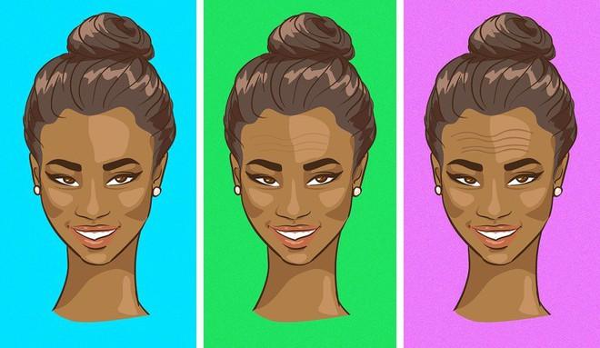 12 dấu hiệu trên khuôn mặt tiết lộ tình trạng sức khỏe của bạn - Ảnh 13.