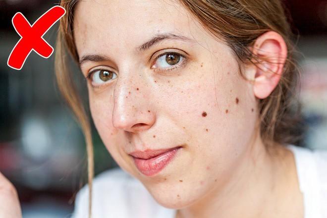 12 dấu hiệu trên khuôn mặt tiết lộ tình trạng sức khỏe của bạn - Ảnh 6.