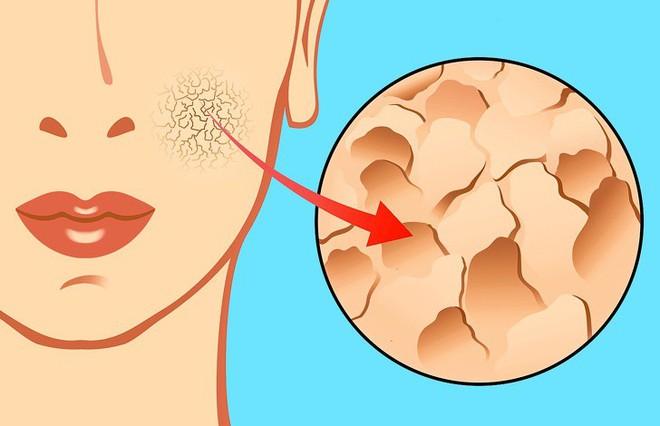 12 dấu hiệu trên khuôn mặt tiết lộ tình trạng sức khỏe của bạn - Ảnh 9.