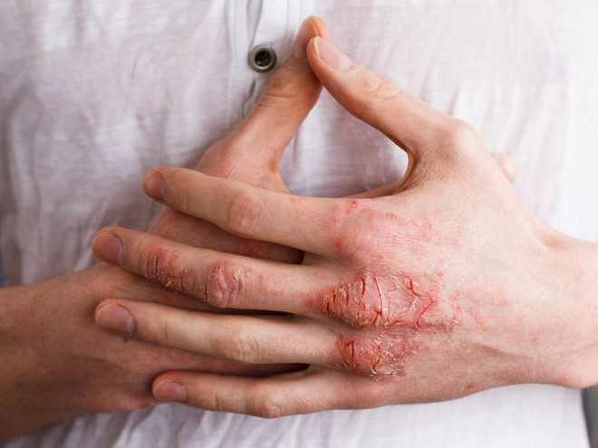 Mùa hè đến rồi, cẩn thận với 5 dấu hiệu cảnh báo ung thư da mà bạn có thể gặp phải - Ảnh 2.