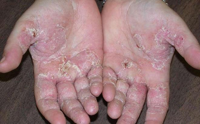 Mùa hè đến rồi, cẩn thận với 5 dấu hiệu cảnh báo ung thư da mà bạn có thể gặp phải - Ảnh 5.