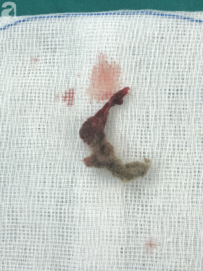 Bé gái 6 tuổi ở Bạc Liêu bị miếng bông vướng trong vùng kín, gây viêm nhiễm kéo dài - Ảnh 1.