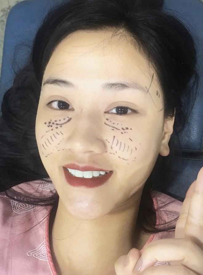 Nhan sắc vốn đã xinh, nhưng 4 bà mẹ này vẫn quyết chọn phẫu thuật thẩm mỹ để trở nên đẹp hơn 20