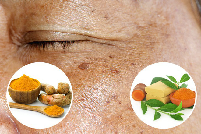 16 nguyên liệu rẻ tiền nhưng có tác dụng thần kỳ giúp loại bỏ các vết nám và tàn nhang trên mặt - Ảnh 6.