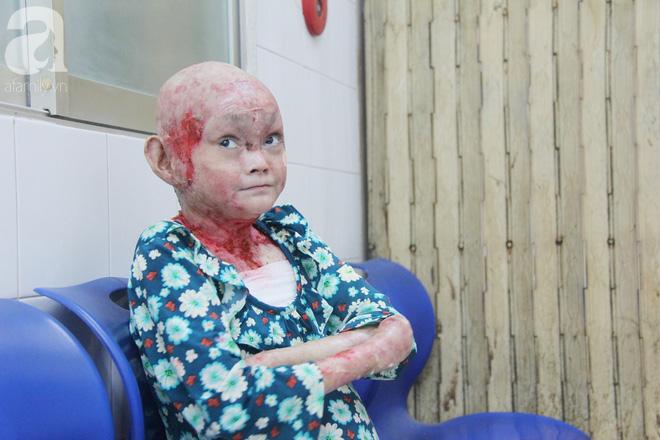 Cô gái trẻ bị lở loét khắp người vì dành tiền chữa bệnh xây cầu cho người nghèo đã nhận hơn 200 triệu đồng