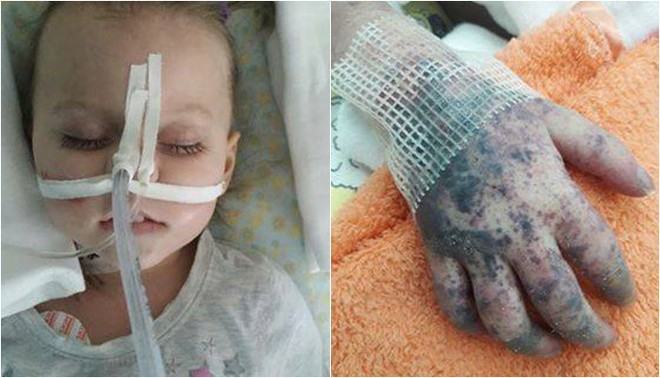 Không tiêm phòng sởi, bé 2 tuổi qua đời trước sự chứng kiến đau lòng của người mẹ - Ảnh 4.