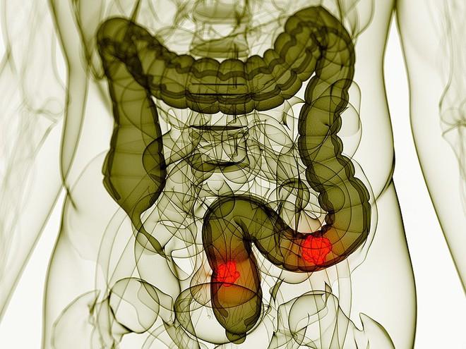 Cơ thể được cung cấp đủ loại vitamin này sẽ giảm nguy cơ ung thư đại trực tràng đến 31% - Ảnh 2.