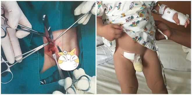 Thấy con có khối u nhỏ ở háng nhưng mẹ không bận tâm, đưa con đi khám nghe bác sĩ nói mẹ mới hốt hoảng - Ảnh 1.