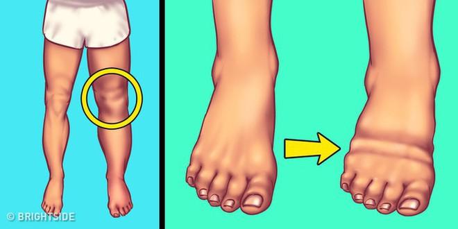 5 dấu hiệu cảnh báo cơ thể bạn đang dư thừa quá nhiều muối - Ảnh 4.