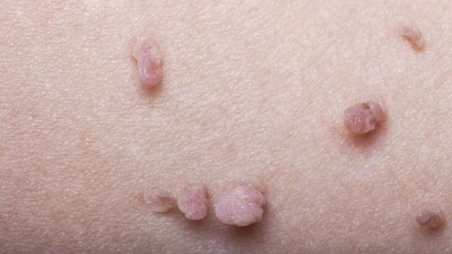 Hãy nghe bác sĩ da liễu chỉ ra các bệnh về da thông qua những dấu hiệu xuất hiện trên da - Ảnh 3.
