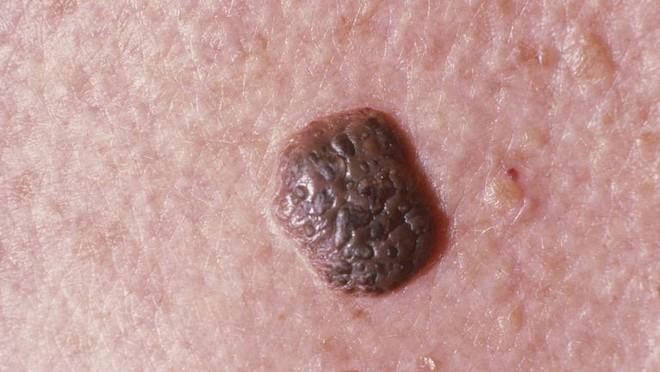 Hãy nghe bác sĩ da liễu chỉ ra các bệnh về da thông qua những dấu hiệu xuất hiện trên da - Ảnh 6.