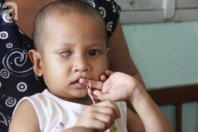 Bé gái 3 tuổi bị ung thư mắt, bố mẹ chở phân bò dành dụm từng đồng tìm lại ánh sáng cho con trong vô vọng - Ảnh 5.