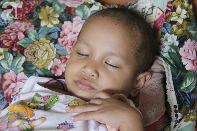 Bé gái 3 tuổi bị ung thư mắt, bố mẹ chở phân bò dành dụm từng đồng tìm lại ánh sáng cho con trong vô vọng - Ảnh 8.
